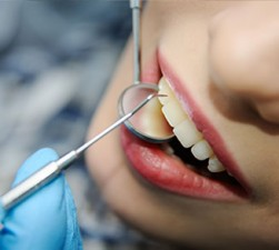 Mercury Amalgam Fillings Removal