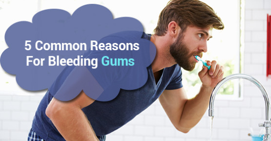 5 Common Reasons For Bleeding Gums