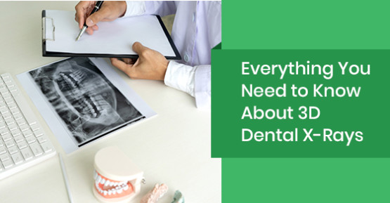 Everything You Need to Know About 3D Dental X-Rays