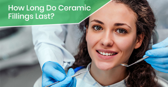 How Long Do Ceramic Fillings Last?