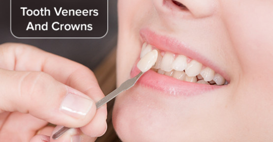 Tooth Veneers And Crowns