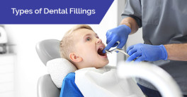 Types of dental fillings