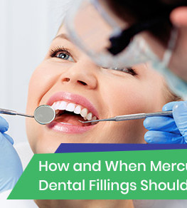 Mercury dental fillings