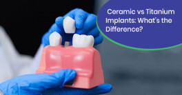 Difference between ceramic and titanium dental implants